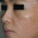 Pigmented lesions – before